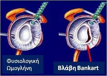Αστάθεια ώμου (4)