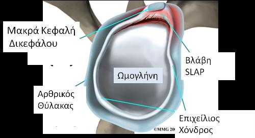 Βλάβες άνω επιχειλίου χόνδρου