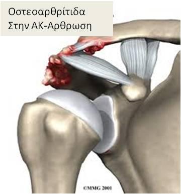 Οστεοαρθρίτιδα στη ΑΚ-Αρθρωση